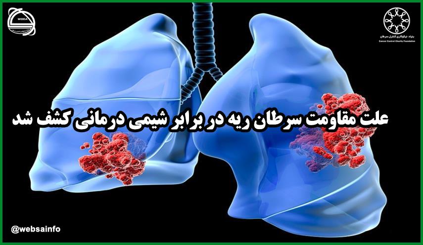 علت مقاومت سرطان ریه در برابر شیمی درمانی کشف شد