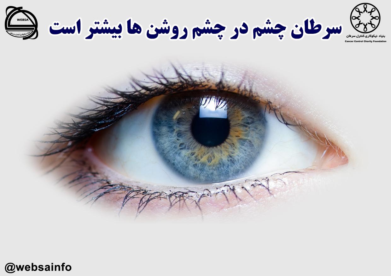 سرطان چشم در چشم روشن ها بیشتر است