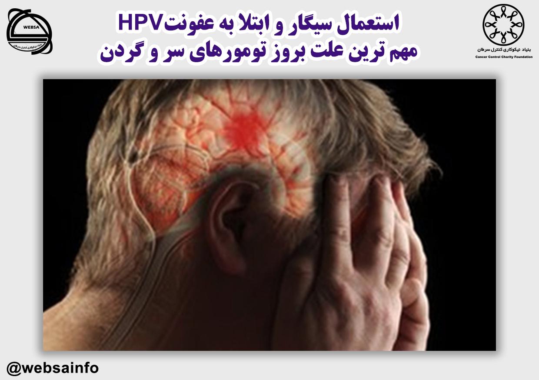 استعمال سیگار و ابتلا به عفونتHPV مهم ترین علت بروز تومورهای سر و گردن