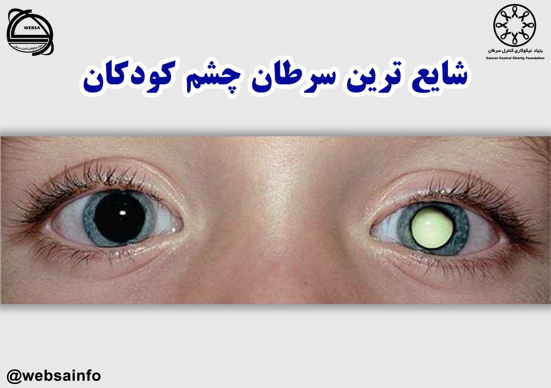 شایع ترین سرطان چشم کودکان