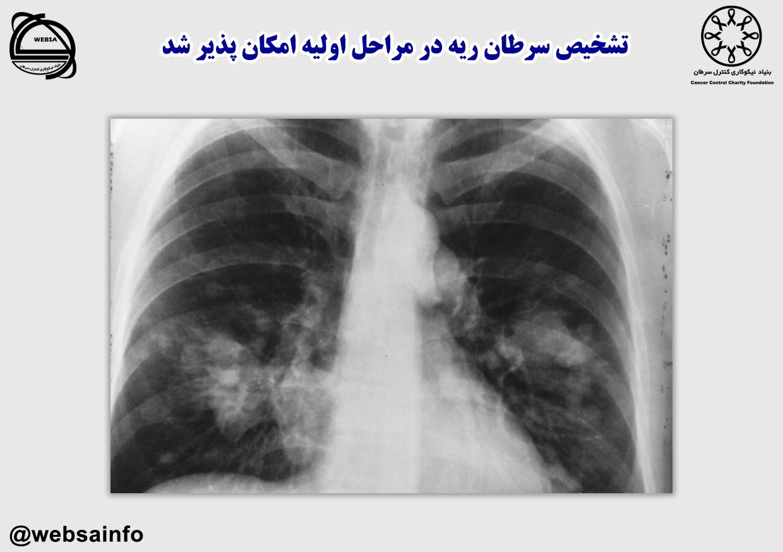 تشخیص سرطان ریه در مراحل اولیه امکان پذیر شد