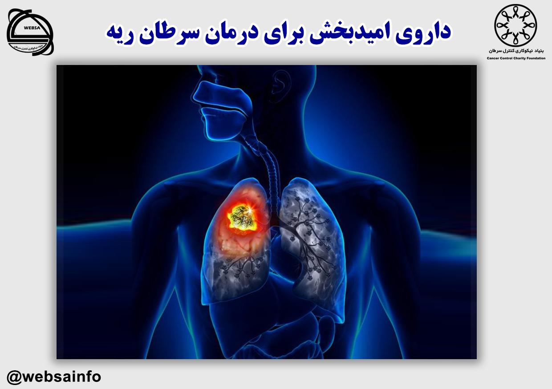 داروی امیدبخش برای درمان سرطان ریه