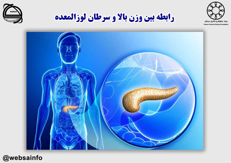 رابطه بین وزن بالا و سرطان لوزالمعده
