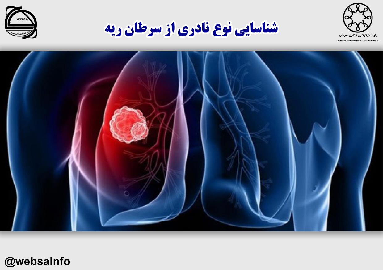 شناسایی نوع نادری از سرطان ریه