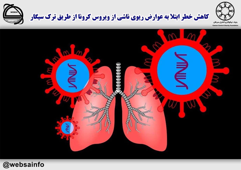 کاهش خطر ابتلا به عوارض ریوی ناشی از ویروس کرونا از طریق ترک سیگار