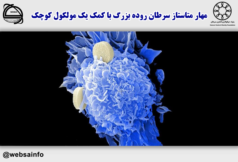 مهار متاستاز سرطان روده بزرگ با کمک یک مولکول کوچک